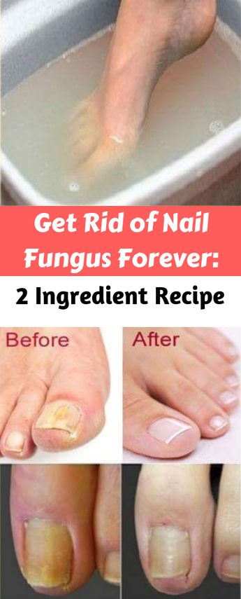 Get Rid of Nail Fungus Forever – 2 Ingredient Recipe | Check This Cure