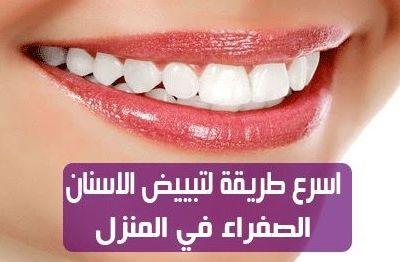 Alasnan الاسنان Alasnan1 Sur Pinterest