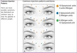 image result for botox injection sites diagram botox eyebrow mapping diagram eyebrow lift diagram #12