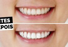 Quer Um Sorriso Deslumbrante Branquei Seus Dentes Com Bicarbonato