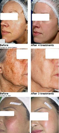 Missouri facial rejuvenation