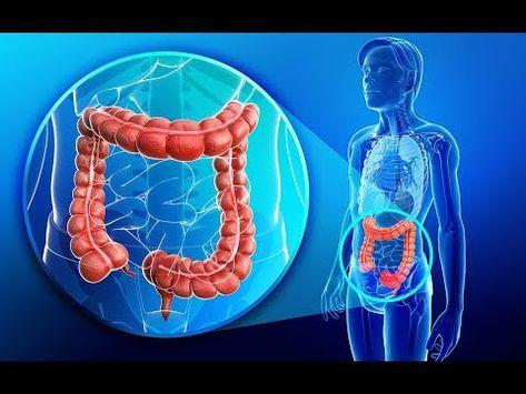 Dieta e morbo di crohn