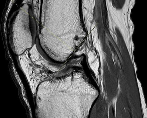 Absent Acl This Is Primary Sign It Should Normally Be Parallel To Blumensaat Line Which Represents Roof Of Intercondylar Notch Acl Tear Radiology Mri