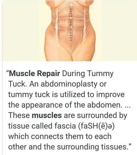 Muscle repair during tummy tuck | Tummy tucks