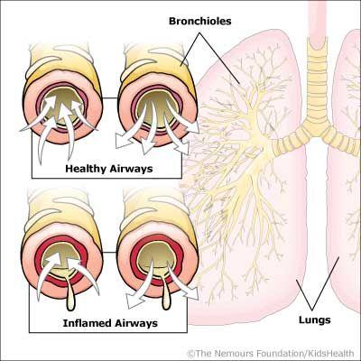 10 Atelectasis Ideas Respiratory Therapy Nursing Education Respiratory Therapist