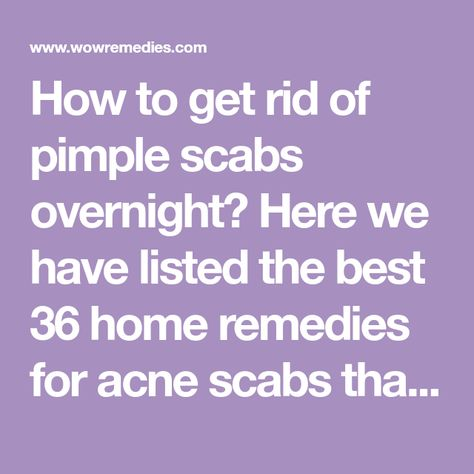 List Of Pinterest Scab Healing How To Get Pictures Pinterest Scab