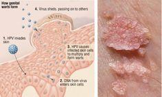 papillomavirus known as hpv