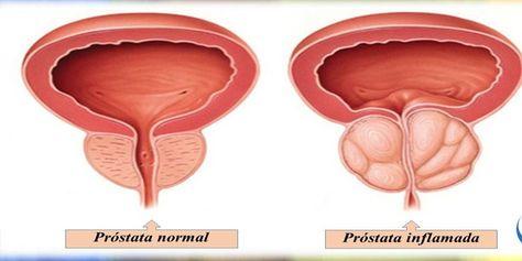 síntomas y tratamientos del cáncer de próstata