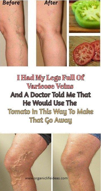 ce doctor varicose