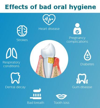 Dental Hygiene And Prophylaxis In Burbank My Dentist Burbank