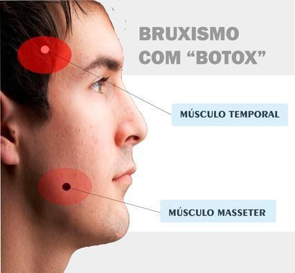 Resultado de imagem para botox e bruxismo
