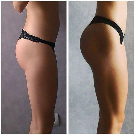 7+ Working Fat Burning Solution Unlock Your Glutes – Develop A Stronger & Rounder Butt