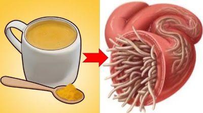 0368f91b45071287200559b3d00d3741 - How To Get Rid Of Worms In Stool Naturally