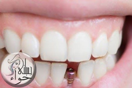 الفرق بين زراعة وتركيب الاسنان Engagement Wedding Rings Engagement Rings