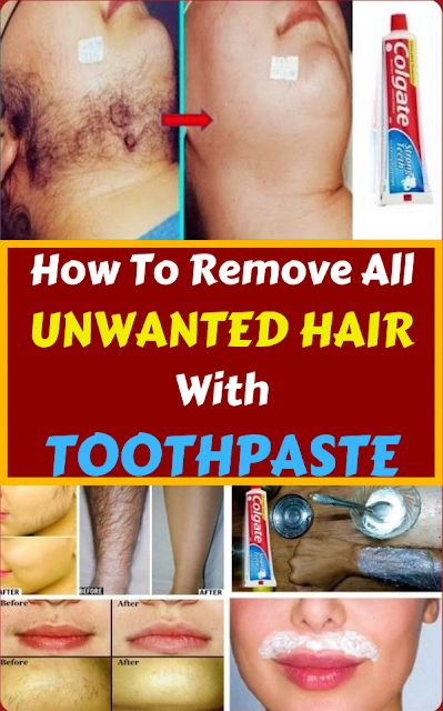 How To Remove All Unwanted Hair With Toothpaste  #unwantedhair #hair #haircare #wellness #homeremedies #Remedies #health #healthy #healthcare #wellness #UpperLipHairRemoval