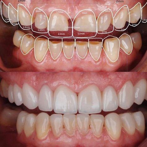 438 Best Odontologia Images In 2020 Dental Dentistry Dental Art