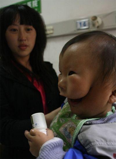 Weird Human Deformities Pictures 1