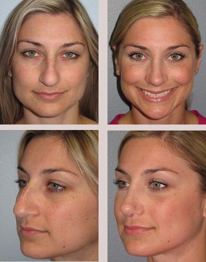 Rhinoplasty Surgery Before Photos After Nose Andnose Surgery