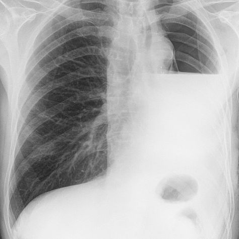 Hydropneumothorax in a post pneumonectomy patient Note the - patient note