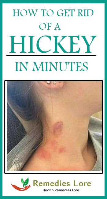 Lip hickey to get rid of a Eliminate A