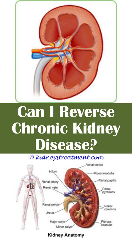 Kidney Disease Quotes I Am Kidney Disease Symptoms Kidney Disease Kidney Failure