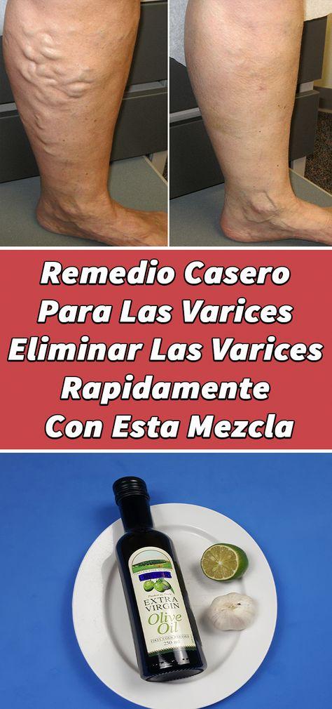 240 Ideas De Remedios Remedios Salud Remedios Naturales