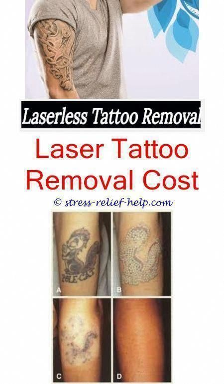 Want To Get That Tattoo Removed Tattoo Removal Cost Tattoo
