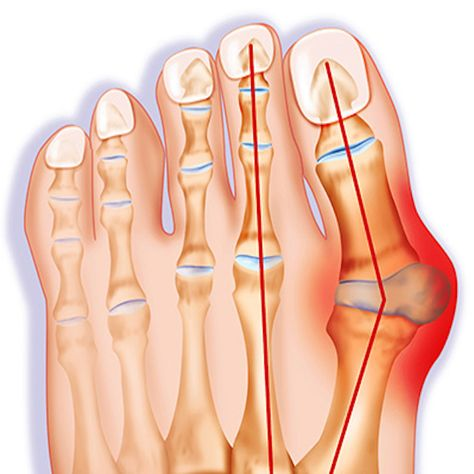 Orthopedic Bunion Corrector 2.0 will improve and fix the situation -For men and women- ! This amazing product will help you to move angled toe back to the natural position while realigning skeletal system for posture correction.