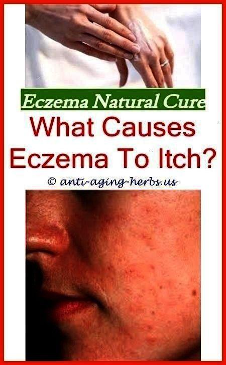 Homemadesoapforeczema Whateczema 96480rash Dietcause Eczemara Homemade Benefits Therapy Lotion Causes Reci Severe Eczema Eczema Lotion Eczema Causes