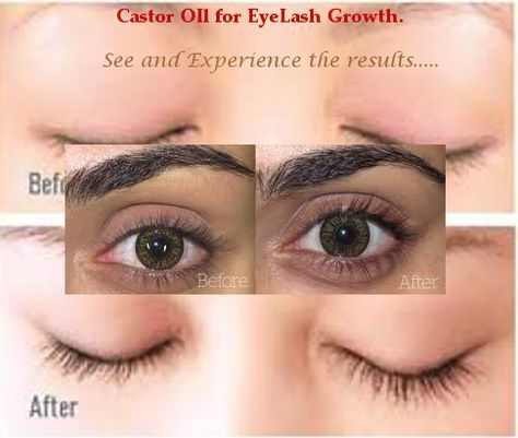Castor Oil For Eyelashes Learn How Castor Oil Can Grow Your Eyelashes Coconut Castor Oil Eyelashes Castor Oil For Face Castor Oil Eyelashes Before And After