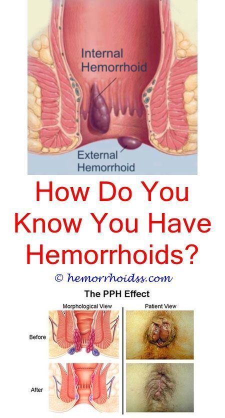Hemorrhoids Are An Usual Problem Particularly While Pregnant And