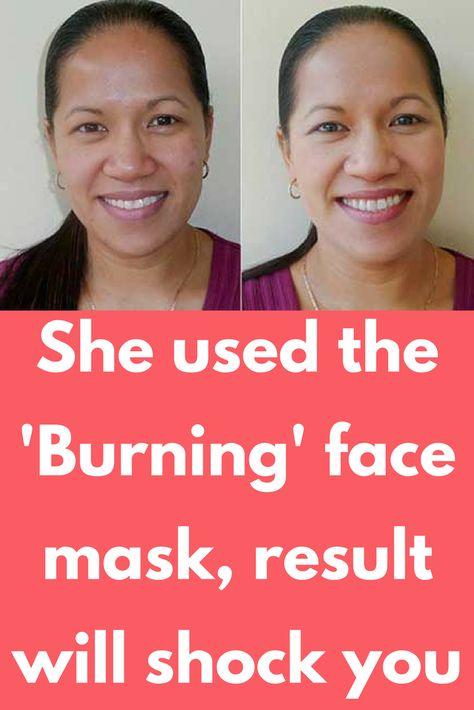059e98bd3fd6cff99488601252fcb054 - How To Get Rid Of Ice Burn On Face