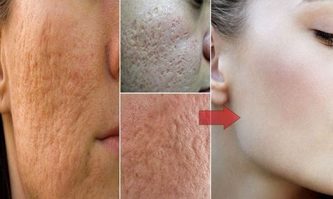 Put Apple Cider Vinegar Оn Your Face And See What Happens Тo Toxins, Eczema Аnd Age Spots