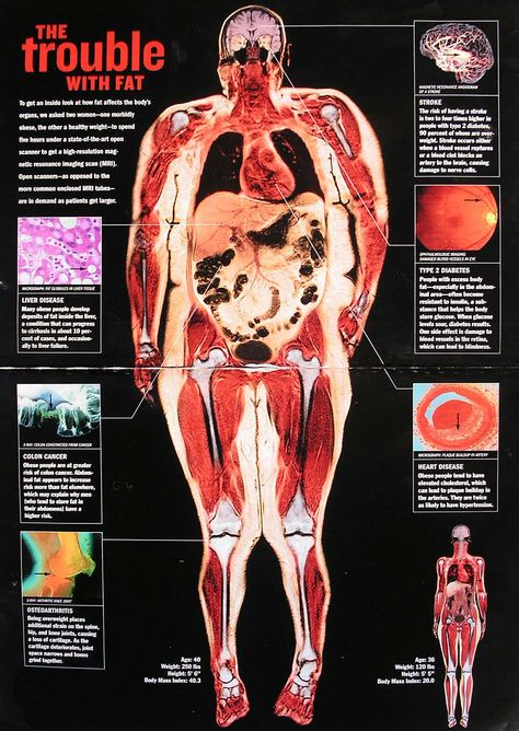 Trouble With Fat Full-body medical scan reveals health complications due to being over-weight (obesity).Full-body medical scan reveals health complications due to being over-weight (obesity).