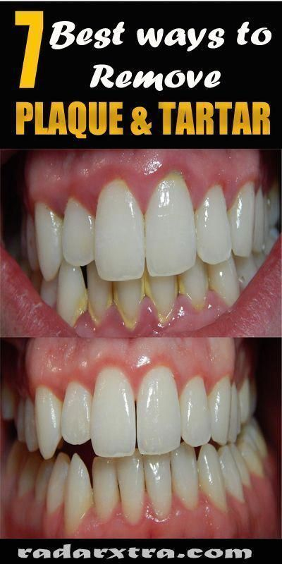 Dentistappointmentmotionless Dental Crowns Before And After Watches Teethwhiteningbali Dentalbridge Oral Hygiene Oral Care Oral