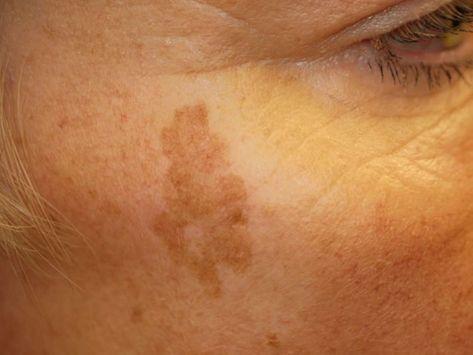 hogyan lehet meggyógyítani az öregedési foltokat a pikkelysömörből kenőcs pikkelysömörre fotó