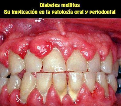 diabetes mellitus en odontologia pdf