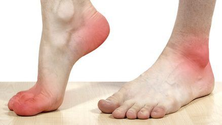 Foot Arch Types What You Need To Know Footgearlab Black Spot On Toenail Black Toenail Fungus Flat Feet Exercises