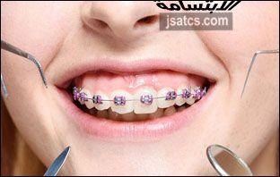 اسعار تقويم الاسنان في دبي Blog Posts Blog