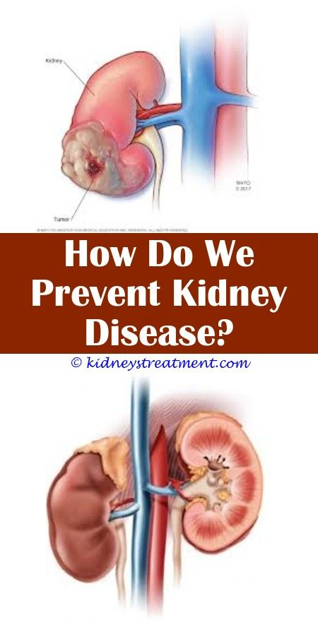 Pin On Kidney Disease Diet