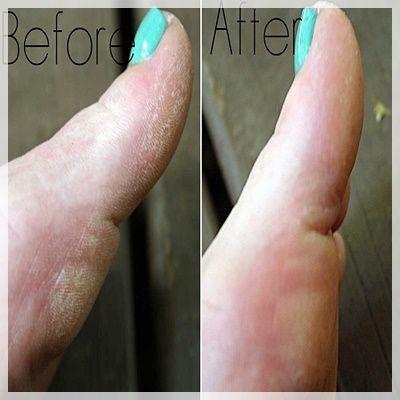 Vinager And Listerine Foot Soak Apple Cider Vinegar Listerine Foot Soak Listerine Foot Soak Fail Diy Foot Soak Dry Skin On Feet Listerine Foot Soak