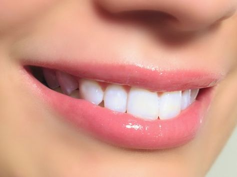 Izbeljivanje zuba aluminijumskom folijom