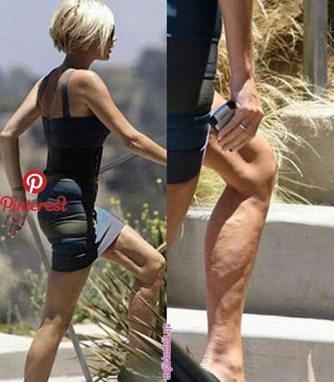 Today& advice for Salon Nuria Espinosa Being thin does not guarantee NOT having cellulite.