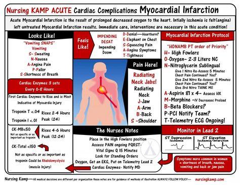 Nursing Cardiac -Nursingkamp.com Myocardial Infarction Nursing KAMP StickEnote TWS Immediate Treatment of a Myocardial Infarction Client  Cardiovascular Care Nursing Mnemonics  nitro morphine asa aspiring Nursing Student NCLEX