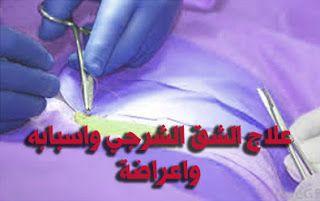 طبيبكم علاج الشرخ الشرجي Blog Posts Blog Post