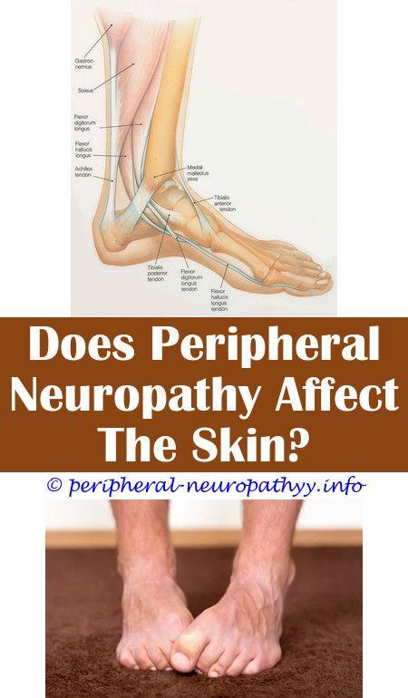 Pin On Cranial Neuropathy