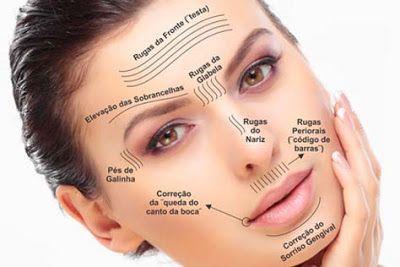 Tudo Que Voce Precisa Saber Sobre A Harmonizacao Facial Botox