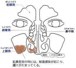 雑誌 マスコミでの紹介 耳鼻咽喉科 ほりクリニック クリニック 学習ノート 健康