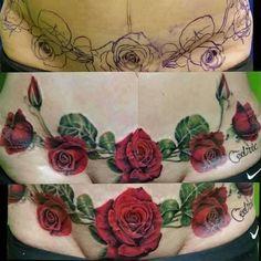 tummy tuck tattoo hides the scar on 100 percent - Abdominoplasty