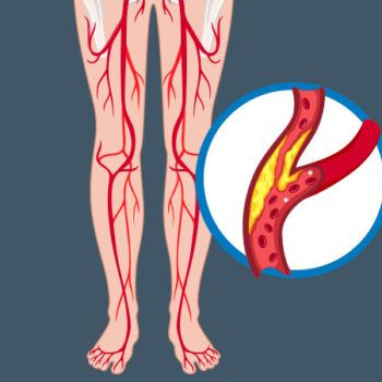 How To Treat Your Peripheral Artery Disease Health Essentials From Cleveland Cli Peripheral Artery Disease Natural Remedies For Gout Hair Loss Natural Remedy